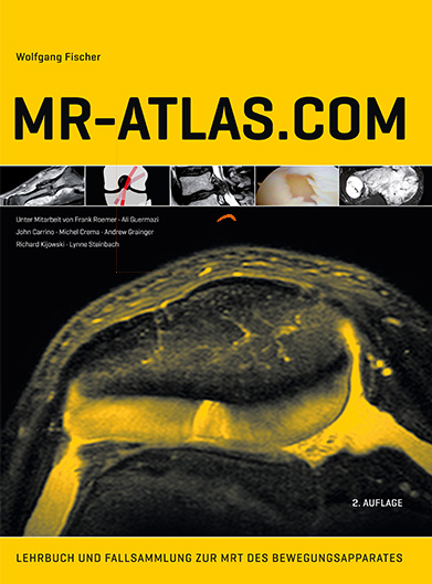 mr atlas